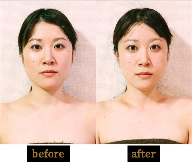 顔の施術01